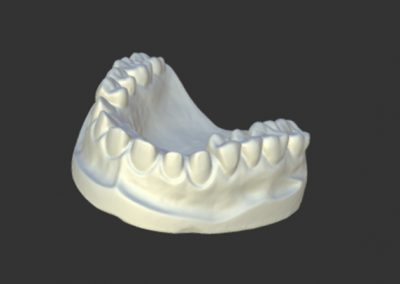 Escaneado 3d dentadura escayola